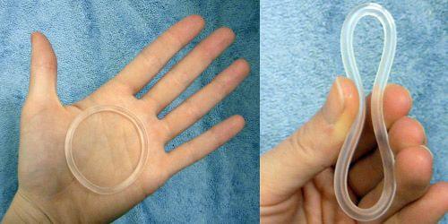 metodo contraccettivo anello